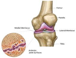 arthritis knee pain medication