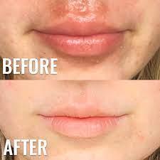 i cured my lip rash cheilitis eczema