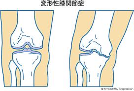 変形性膝関節症の原因|【阿部 信寛】変形性膝関節症になるのを食い止める保存療法から、外科的治療まで、まず重要なのは「患者さんに合った治療の提案」です。