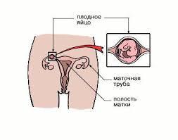 ВНЕМАТОЧНАЯ БЕРЕМЕННОСТЬ Энциклопедия ru Внематочная беременность