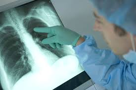Triệu chứng viêm phổi thường gặp