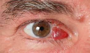 Resultado de imagem para rabdomiossarcoma