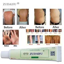 Buy cream for eczema and get free shipping on AliExpress.com