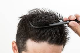 医師が選ぶ薄毛が目立ちにくい髪型男性編