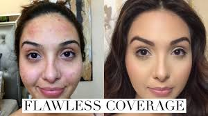 how to cover acne breakouts dark spots with makeup
