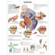 Arthritis Chart