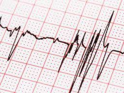 How To Read Cardiogram Chart Ekg Results For A Fib Characteristics Types Symptoms And