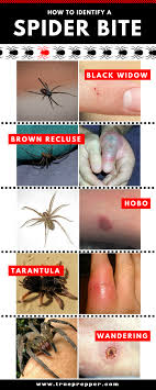 Spider Bite Identification Chart Pictures How To Identify A Spider Bite And Treat It Spider Bites