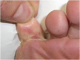 Home Remedy for Itchy Foot...One can treat itchy feet at home by ...