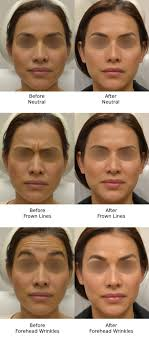 botox los angeles wrinkle reduction