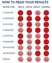 Blood Transfusion Chart Google Medical Laboratory
