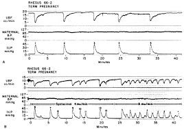 Pregnancy Labor Contractions Chart Uterine And Placental Blood Flow Glowm