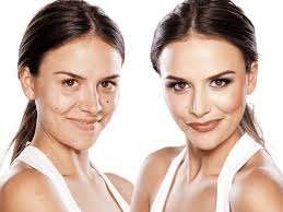 skin hyper pigmentation treatment