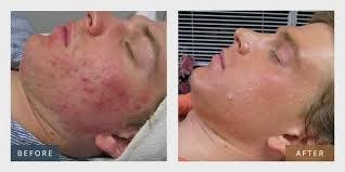 Mederma Acne Cicatrix Remover Is It Powerful