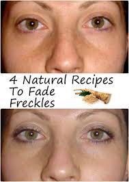 Tips Beauty Makeup Fade Natural Wales Recipes Tutorials To Freckles Makeup Beauty 4