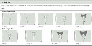 Puberty Boys Baby Development Hair Growth Stages Clinic