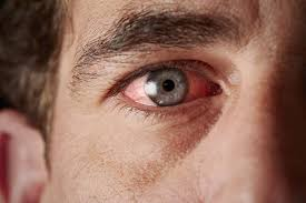 does pink eye require urgent care