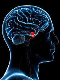 Brain Aneurysms Symptoms Causes Diagnosis And Treatment
