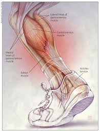 Image result for achilles tendinitis free images. This diagram illustrates the various tendons which comprise the Achilles while the person is wearing a sock and shoe.