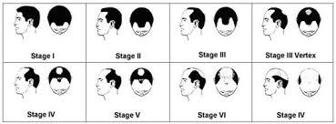 Male Hair Loss Indianapolis Hair Loss Treatments Indiana