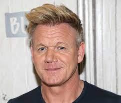 celebrity hair transplants joe swash