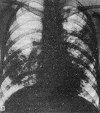 Казеозная пневмония Симптомы и диагностика туберкулёза Фтизиатрия Казеозная пневмония