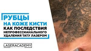 рубцы на коже кисти как последствия непрофессионального удаления тату лазером