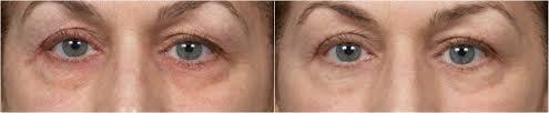 fade true hyperpigmentation