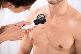 How is folliculitis diagnosed?