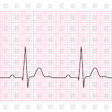 Medical Electrocardiogram Ecg On Chart Paper Stock Vector Image