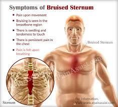 sharp pain in chest. signs \u0026 symptoms of bruised sternum sharp pain in chest