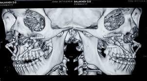 Дистракция верхней челюсти при устранении открытого прикуса и  контрольная МСКТ этого же пациента после завершения периода активации и ретенция дистракторов