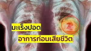 มะเร็งปอดระยะสุดท้าย อาการก่อนเสียชีวิต - YouTube