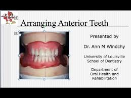 teeth setting video 17 c d arrangement of the anterior teeth lecture youtube