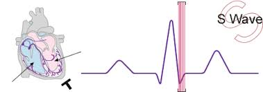 The S Wave Sinus Rhythm Normal Function Of The Heart