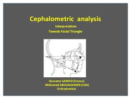 cephalometric analysis tweed triangle oussama sandid moham cephalometric analysis interpretation tweeds facial triangle oussama sandid mohamad aboualnaser usa