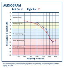 29 Perspicuous Hearing Age Chart