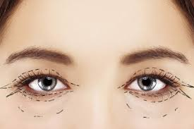 Image result for blepharoplasty surgeon images