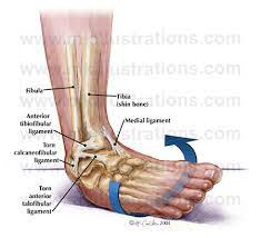 what to do if you sprain your ankle