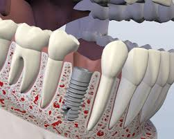 dental implants houston tx oral surgery sugar land wisdom tooth dental implants are designed to provide a foundation for replacement teeth that look feel and function like natural teeth the person who has lost teeth