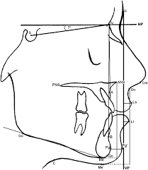 maintenance of a deep bite prior to surgical mandibular supplementary data