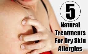 5 Most Effective Natural Treatments For Dry Skin Allergies And Their ...