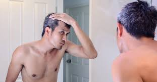 hair loss on temples causes and treatment