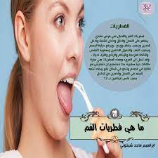 علاج فطريات اللسان... - أخصائي أسنان Dental Specialist