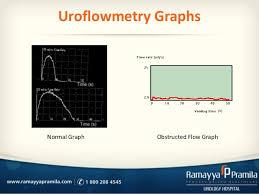 Urodynamics Uroflowmetry