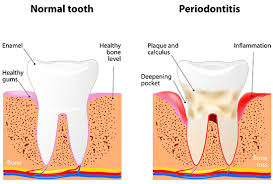 Image result for free picture of periodontal disease