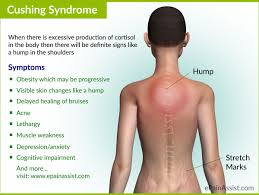 joint pain causes and home remedies