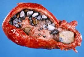 ceai pietre rinichi
