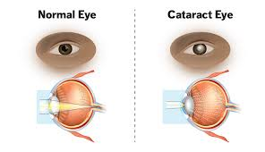 What Are Cataracts Understanding Symptoms And Treatment
