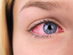 meibomianitis causes symptoms and